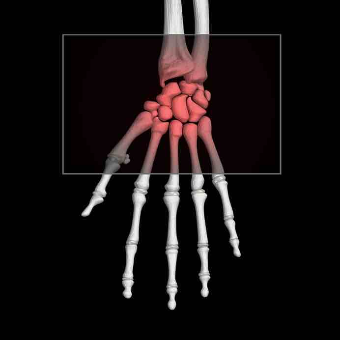 Hand bones showing wrist pain